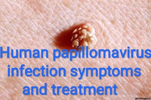 human papillomavirus skin rash)
