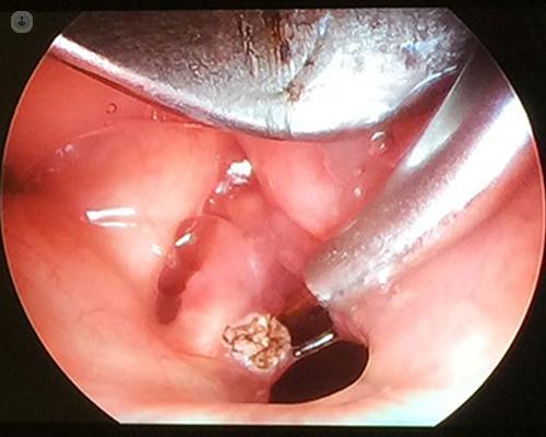 laryngeal papillomatosis and dysphagia