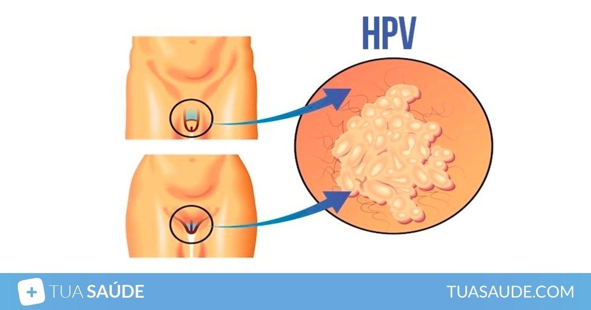 virus del papiloma que sintomas)