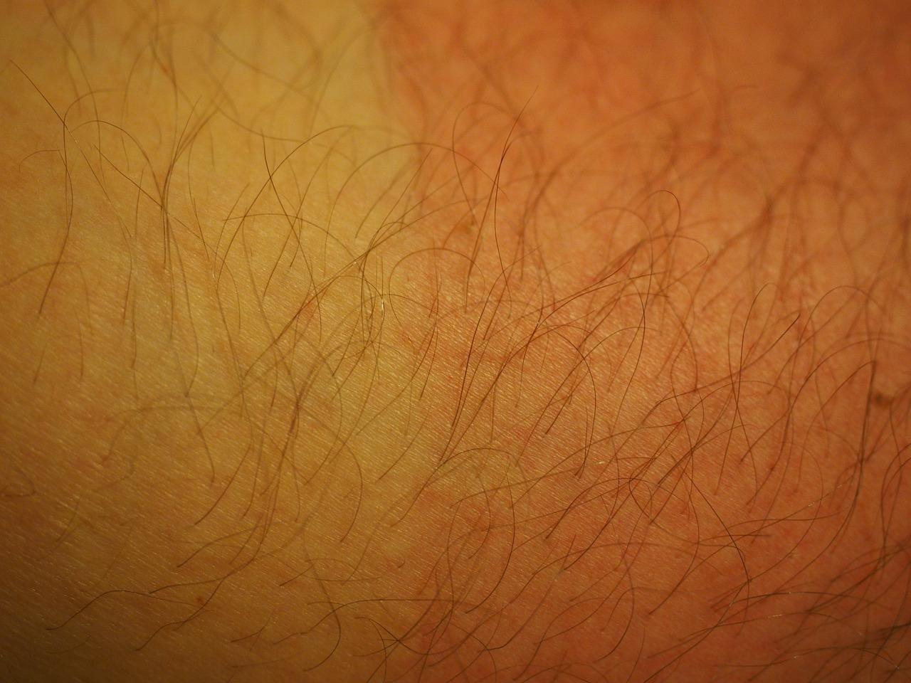 Atenţie: Patru simptome care anunţă cancer de piele – ce dezvăluie cercetatorii