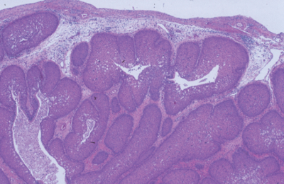 inverted papilloma nasal