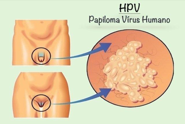 virus papiloma en ano