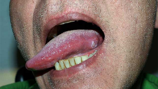hpv caused tongue cancer)