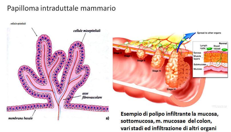 papilloma al seno maligno)