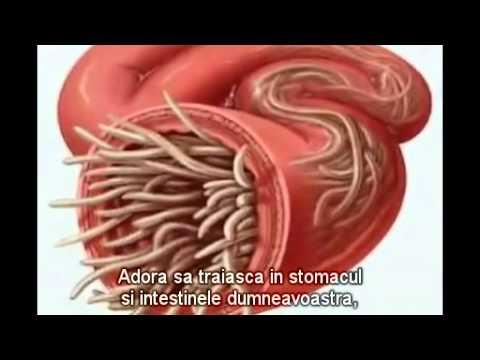 Paraziți Intestinali – Cel mai bun tratament ne-medicamentos, naturist   Germyx