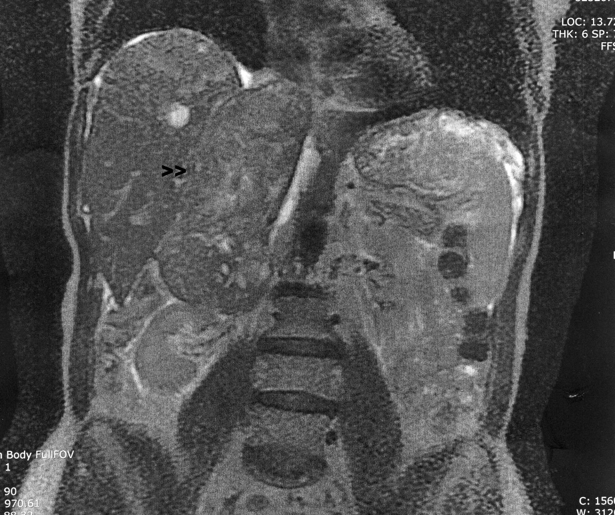 cancer abdominal cie 10)