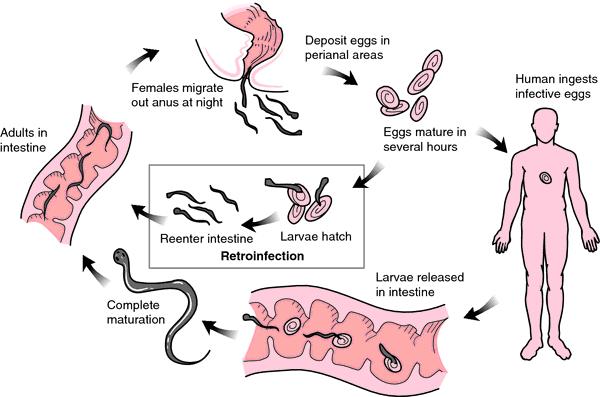 enterobius vermicularis o que e)