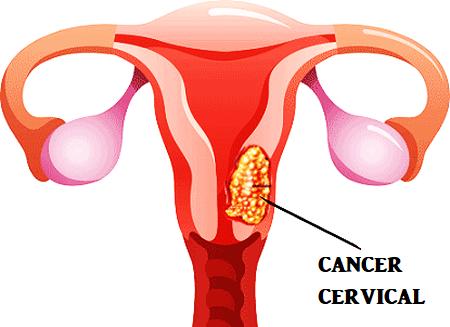 cancerul cervical)