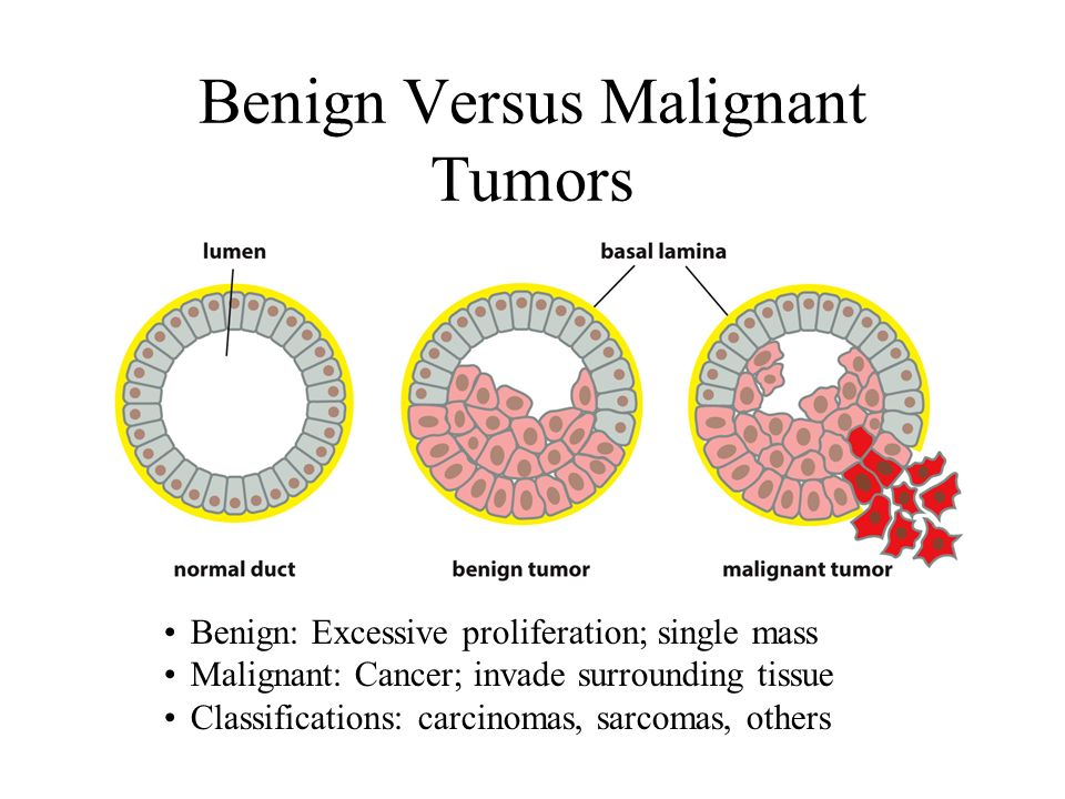 cancer is benign or malignant)