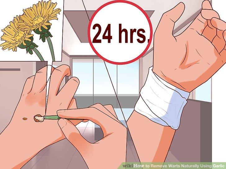 warts treatment garlic