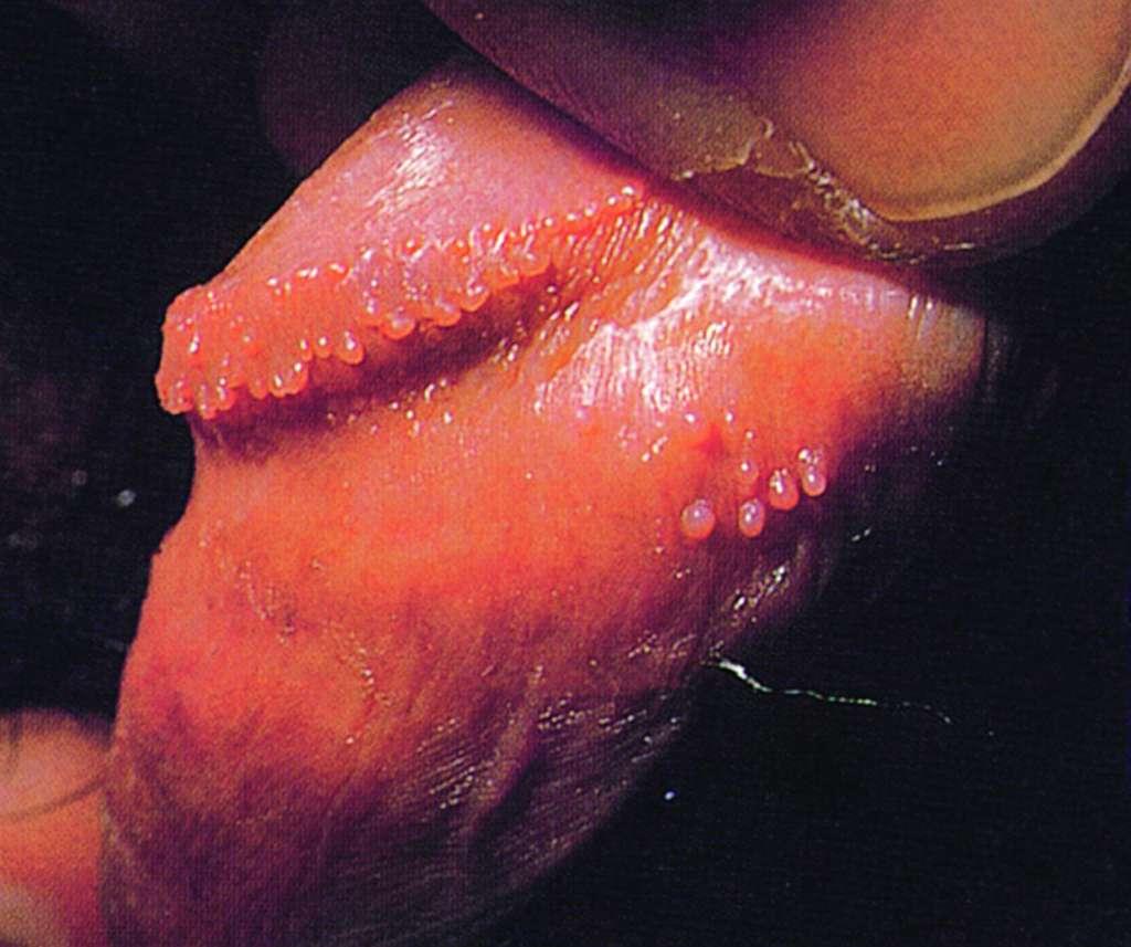 papilloma hirsutoid)