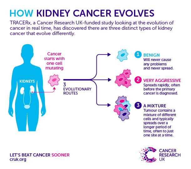 renal cancer screening)