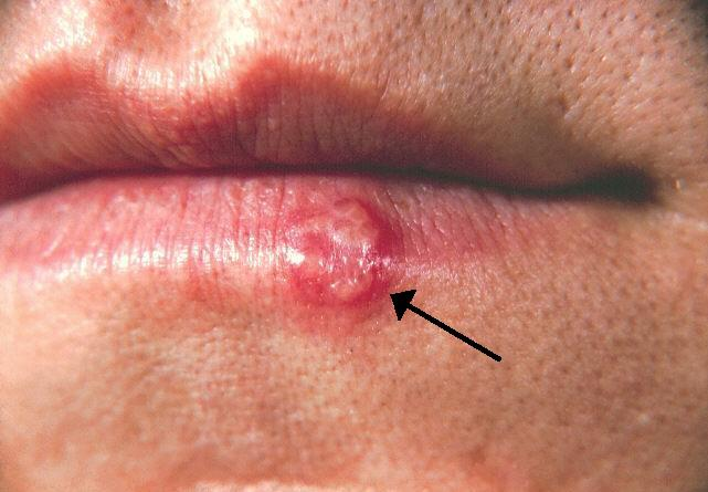 hpv e herpes zoster)