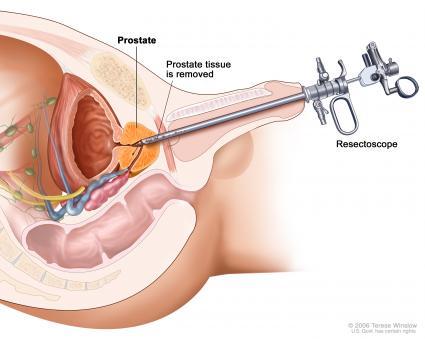infectie prostata simptome
