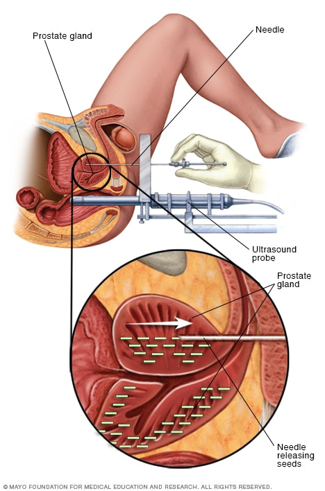 cervical cancer internal radiation