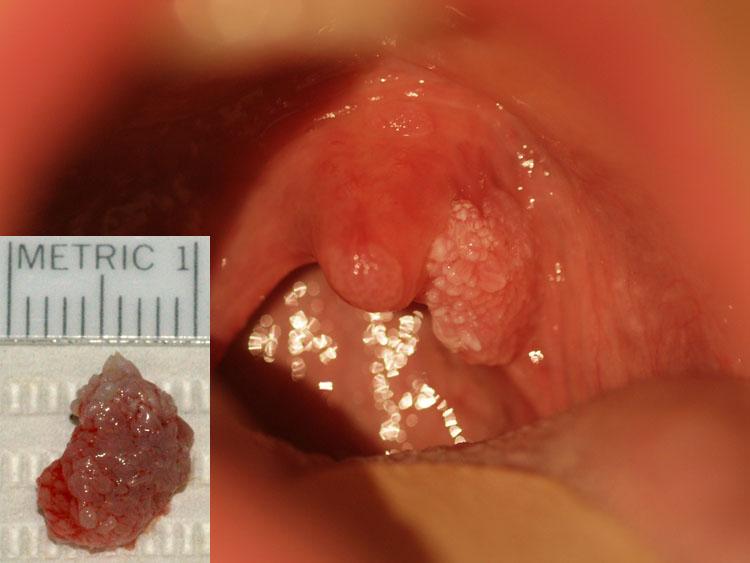 Papilloma arcului palatinei (amigdale): cauze și tratamente