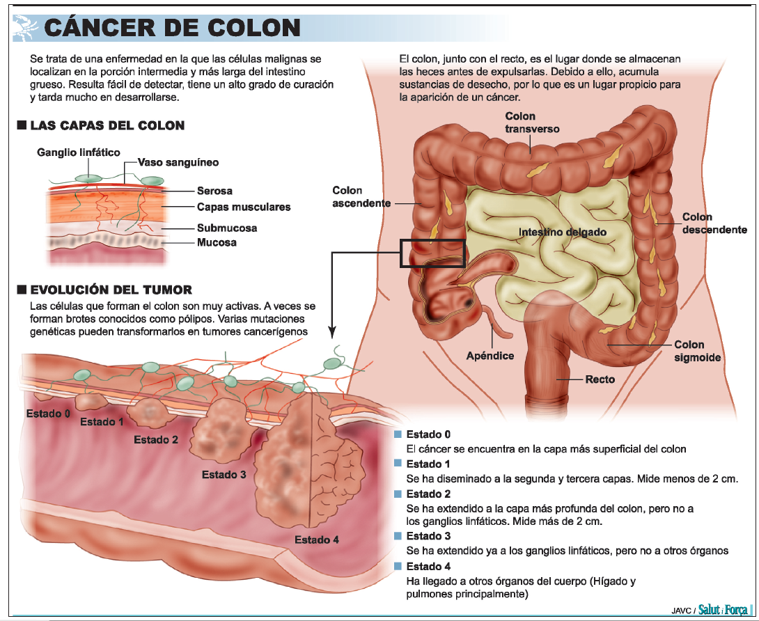 papillary lesion in adenocarcinoma cancerul sarcoma