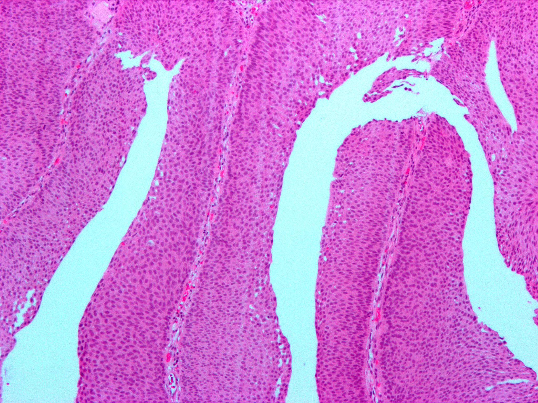 Neoplasm al articulației șoldului