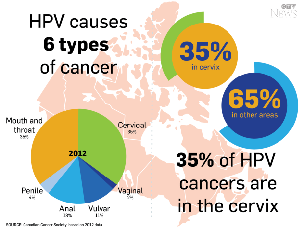papillomavirus causes the cancer of the)