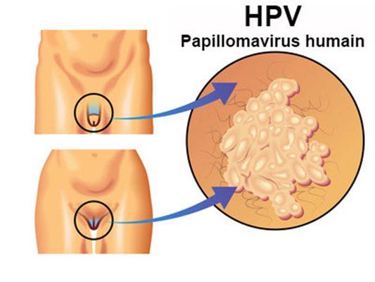 papillomavirus ganglions symptomes)