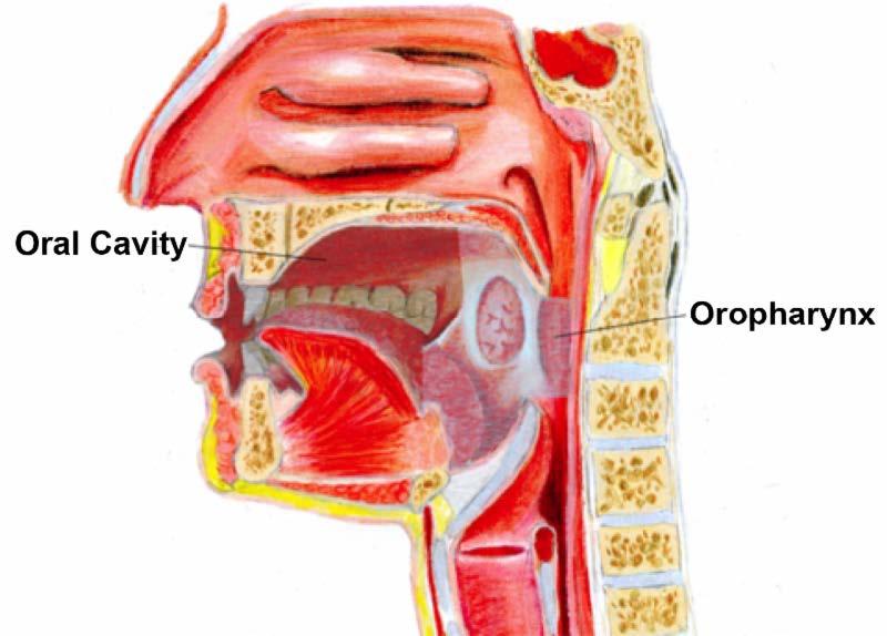 hpv throat tumor)