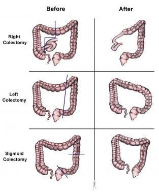 cancer de colon metastaza simptome)