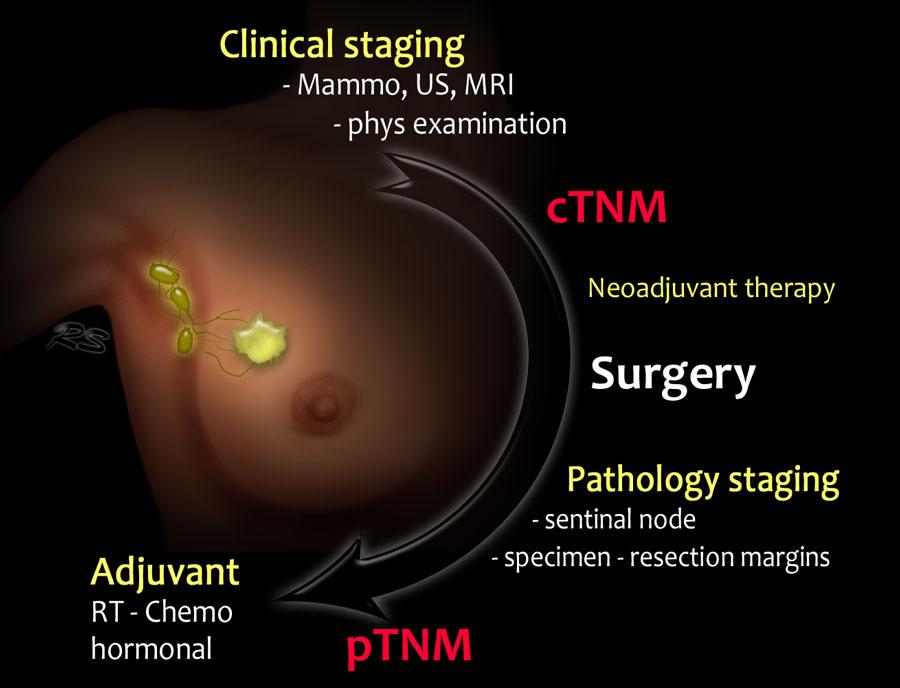 benign cancer stages)