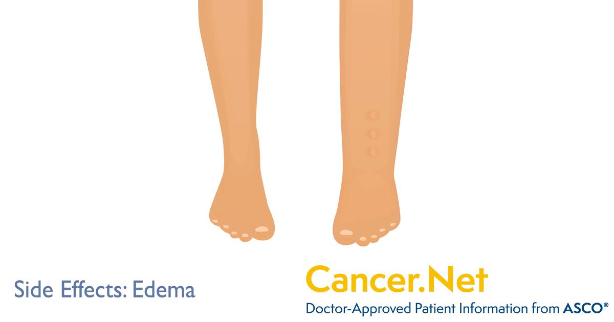 pancreatic cancer abdominal fluid retention