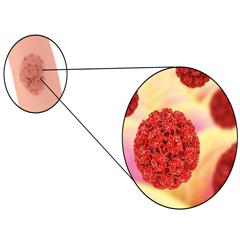 Hpv afectează prostatita