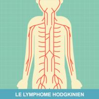 Ce este limfomul non-Hodgkin ?