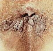 nhs hpv genital warts
