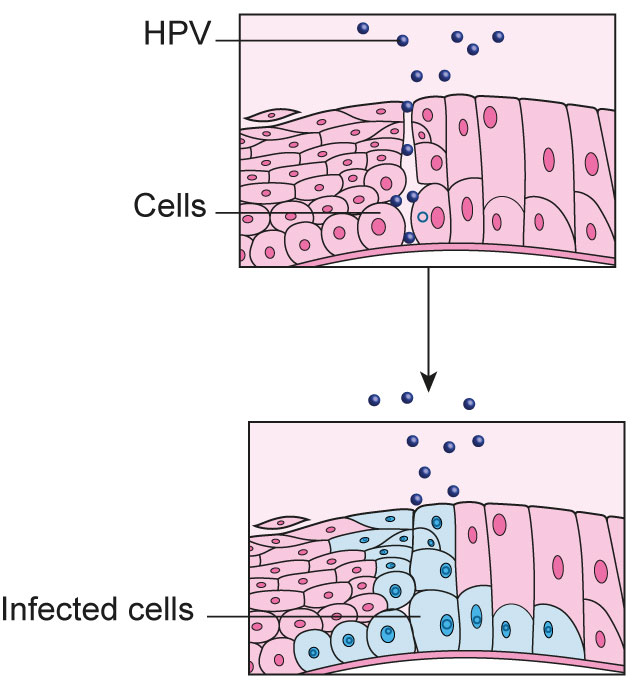 hpv carcinoma cervix)