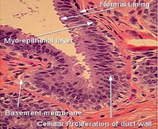 breast intraductal papilloma with atypia)