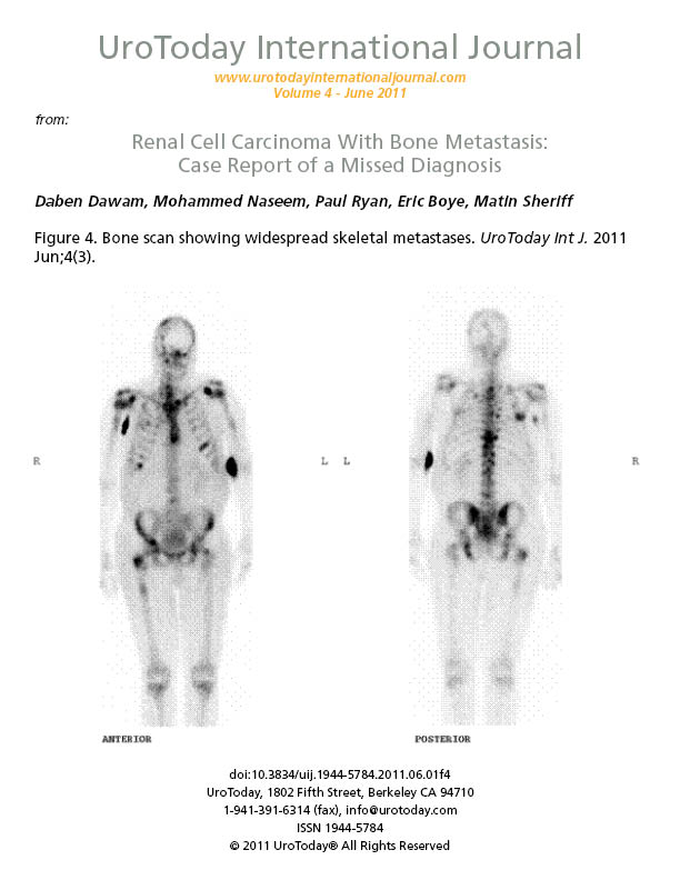 renal cancer with bone metastases