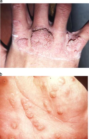 human papillomavirus infection elbow)