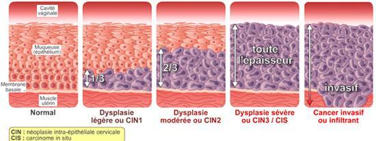 papiloma humano en la cara causas virus del papiloma tratamiento en hombres