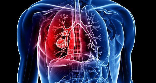 cancer pulmonar netratat