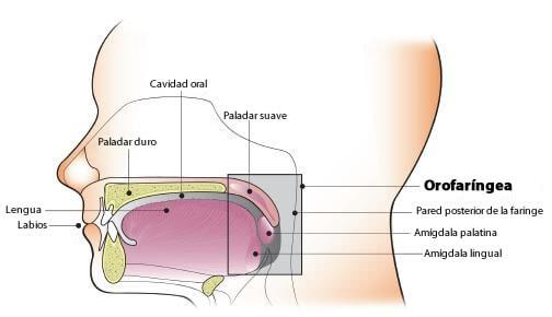 papiloma escamoso faringe