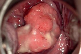 cancer gastric biopsie pathology of papillomavirus