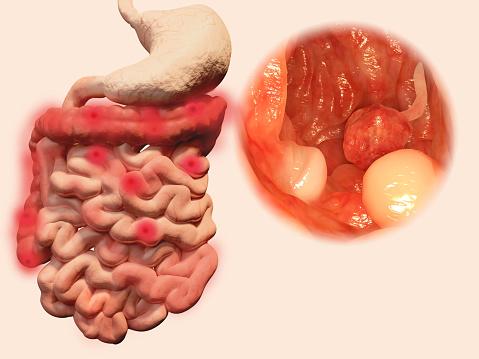 colorectal cancer ibd
