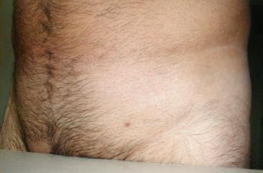 Cine a crescut condiloame cum. HPV genotipare în leziune/raclat (regiunea anogenitală și orală)