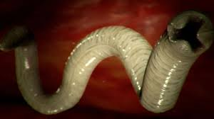gliste i paraziti u crevima