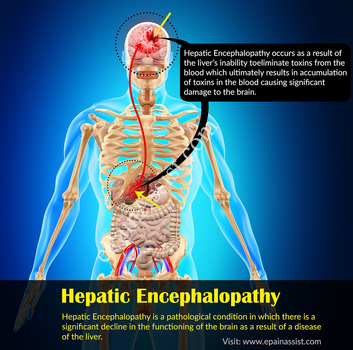 liver cancer hepatic encephalopathy