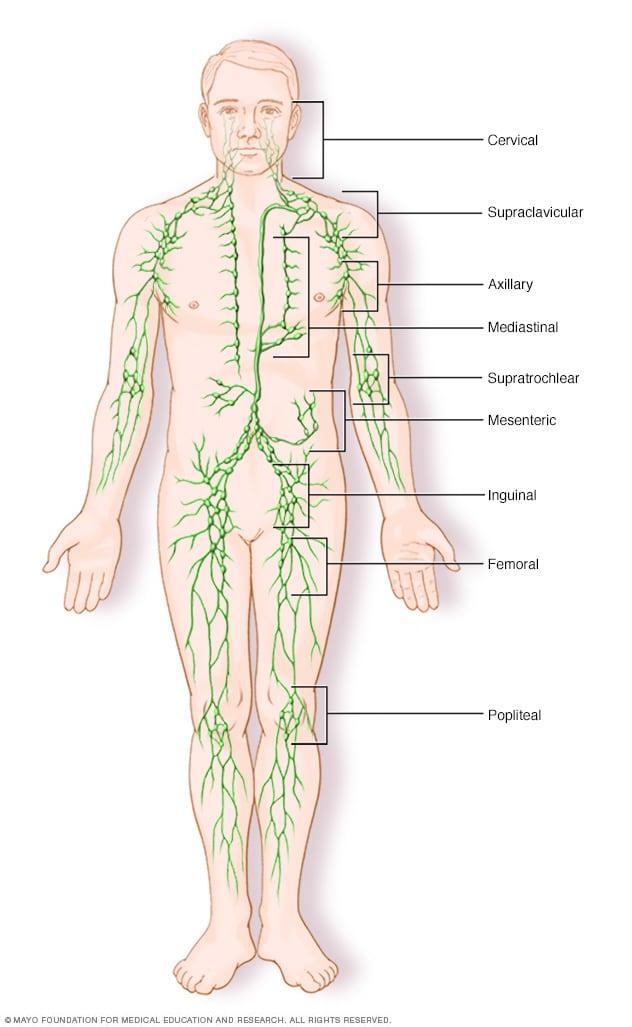 cancer hodgkin human lymph lymphoma nodes non icon)