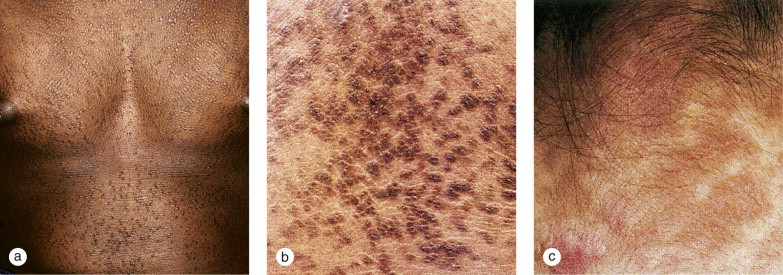 epidermal papillomatosis icd 10)