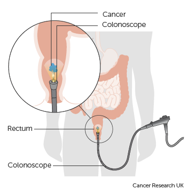 Obstruction and perforation in colo-rectal cancer.