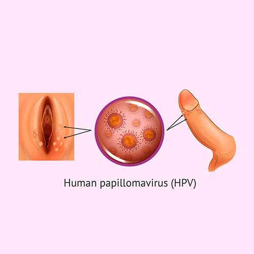 hpv urethra treatment)
