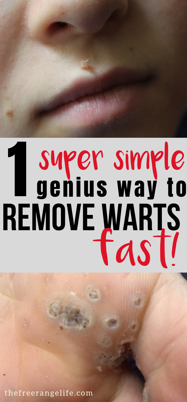 mouth warts remedy)