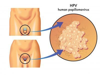 human papillomavirus symptoms female