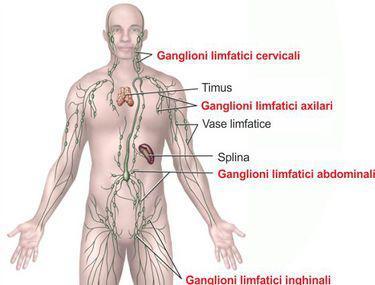 Cancerul limfatic – cauze, simptome și tratament
